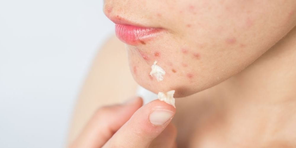 women apply cocoa butter for acne scars